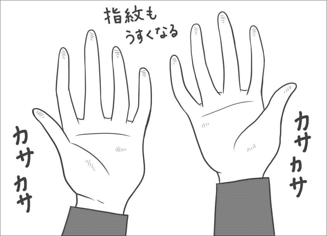 手がカサカサで指紋も薄くなる